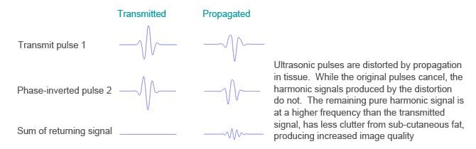 Harmonic imaging from Edan